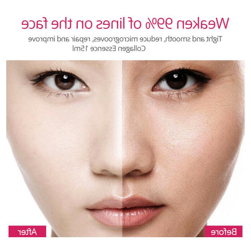 Argireline Serum Firming Skin Care