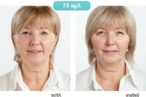 Matrixyl 3000 Acid Collagen Vitamin