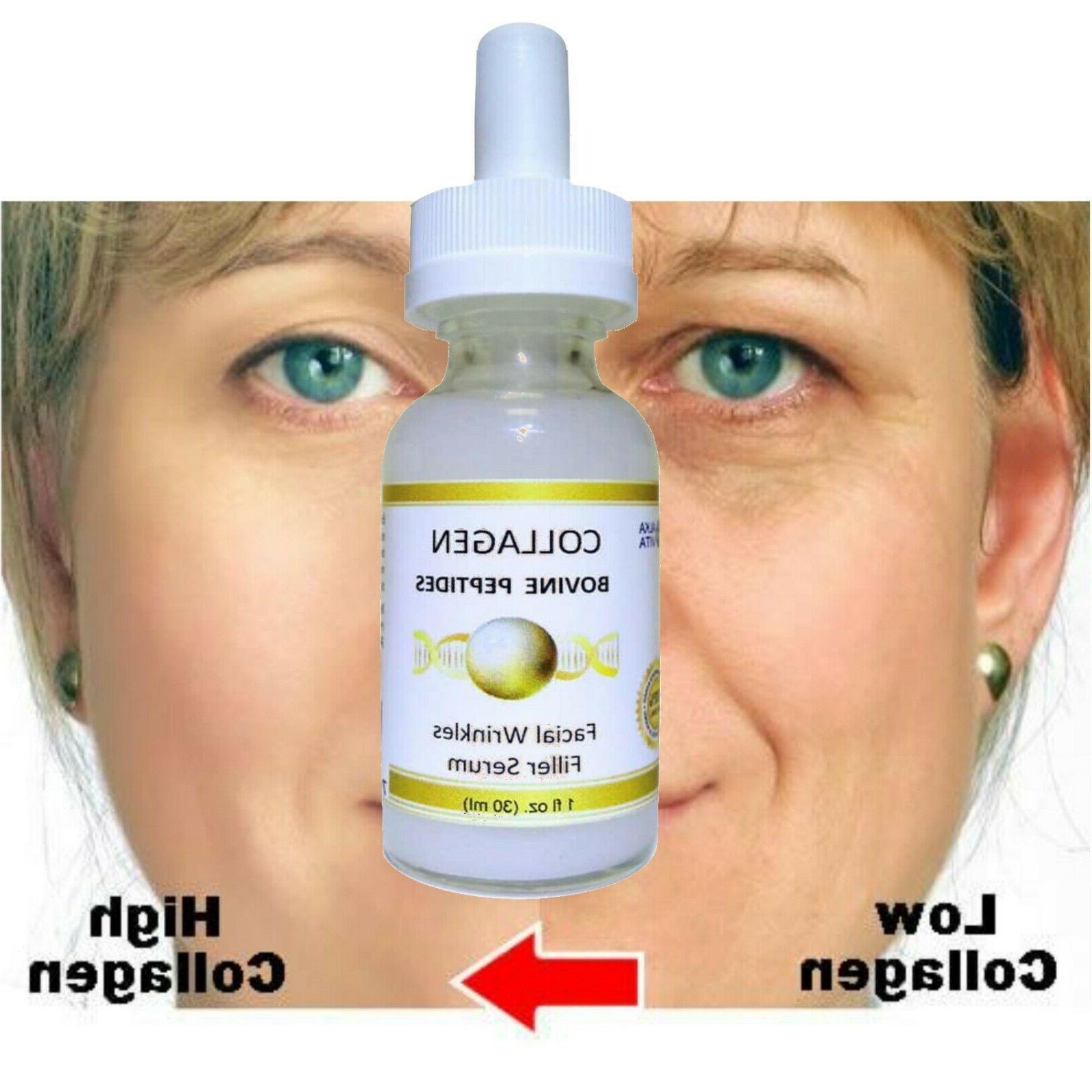 COLLAGEN PEPTIDES Wrinkles Filler Hydrolyzed Bovine Grade ALKAVITA