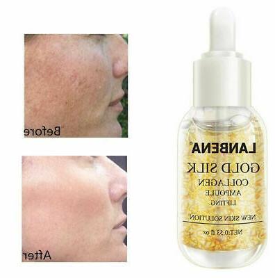 gold collagen serum whitening removes melanin firming