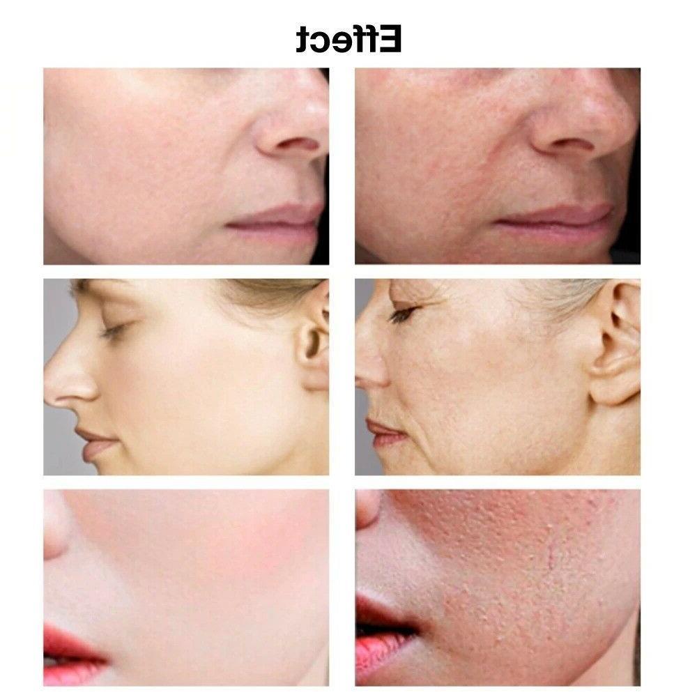 Serum Anti-Aging Wrinkle Firming